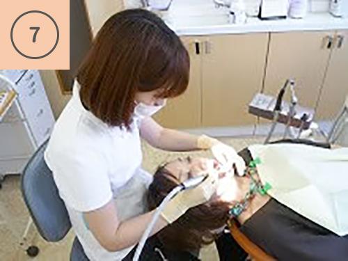 治療に入る前に歯面を清掃します。