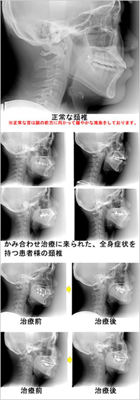 噛み合わせ治療による頚椎(首の骨)配列の変化